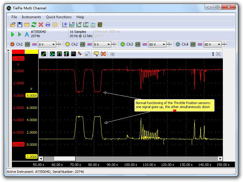 Normal TPS signals
