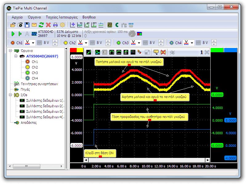 Μέτρηση με παλμογράφο του αισθητήρα θέσης του πεντάλ επιτάχυνσης